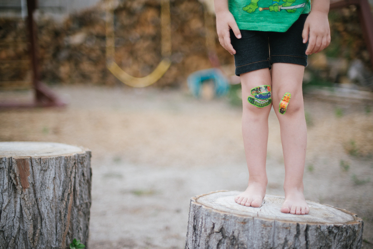 Bandaids on knees - Family Documentary Photography
