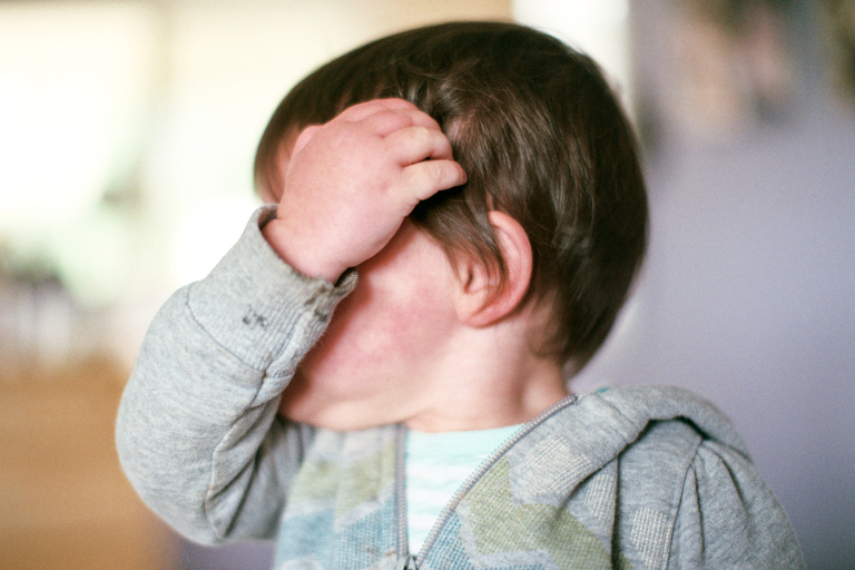 Baby crying from head bump - Family Documentary Photography