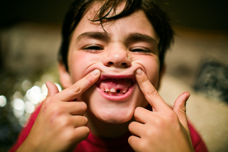 boy shows off missing tooth - Documentary Family Photography